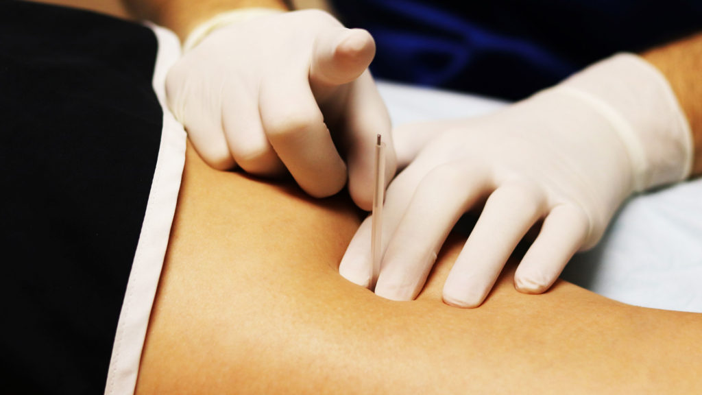 ODNS Dry Needling Level 2 Course